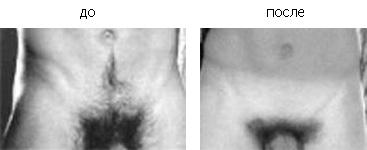 Видео женских интим причесок фото 108-401